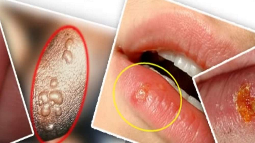 Лечение герпеса на губах в домашних условиях