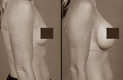 операция по подтяжке груди фото