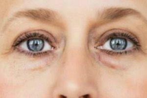 Причины появления мешков под глазами