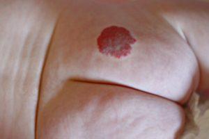 Гемангиома у новорожденных - лечение