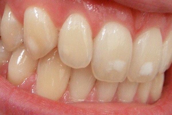 Причины скрипа зубов у взрослых