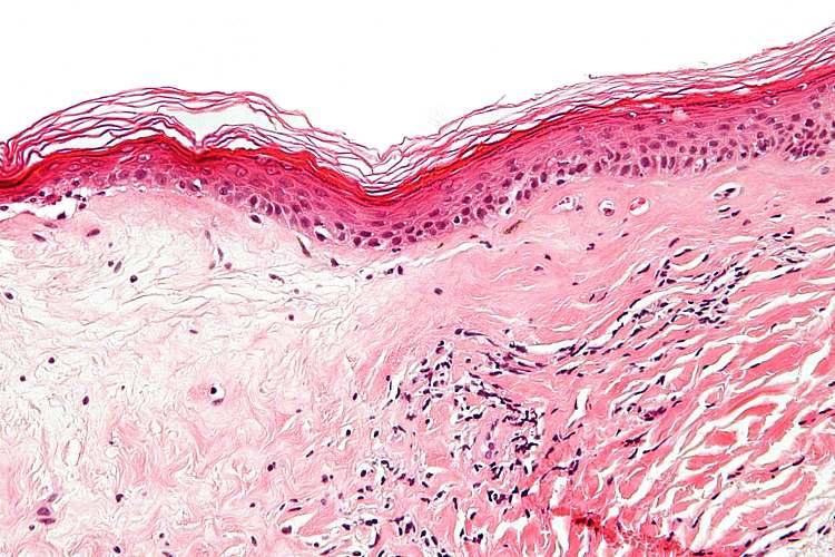 Причины бактериального вагиноза