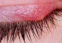 Лекарство от ячменя на глазу