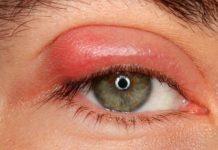 Симптомы и причины ячменя на глазу