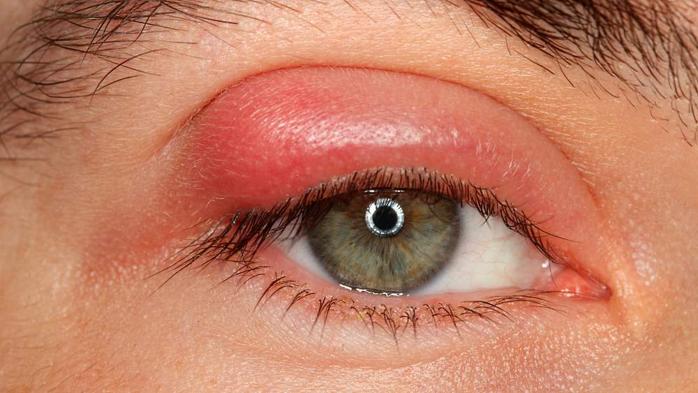 Ячмень на глазу - симптомы, причины