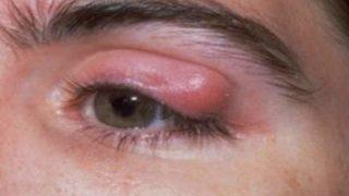 Основные смптомы и причины ячменя на глазу