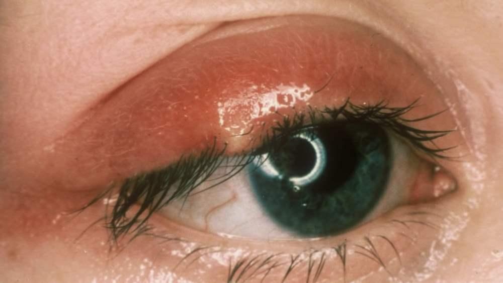 Ячмень на глазу - лечение в домашних условиях