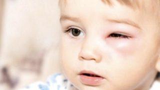 Помощь ребенку при укусе осы